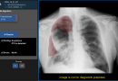 Health Canada Licenses First AI Algorithms Embedded On-Device to Prioritize Critical Chest X-ray Review